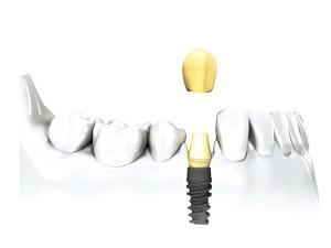 implant-unitaire.001